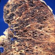 1980 Emphysema Affected Lung Minorities and Tobacco