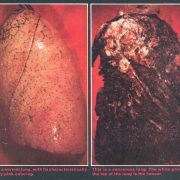 1985 ALA Public Service Ad Healthy Cancerous Lung Minorities and Tobacco