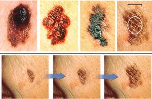 Progression of Melanoma on the Skin