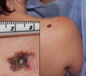 Instance of Melanoma on a Patient's Shoulder