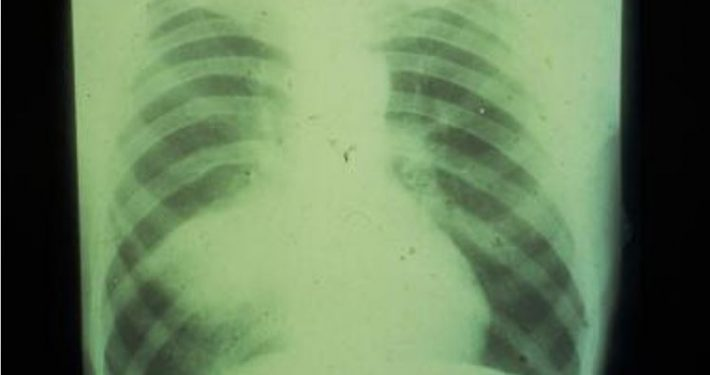 X-Ray of a Lung Indicating Cancer in the Lower left Side